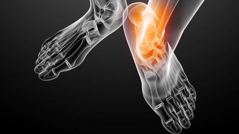 Joint Pain Conditions | Integrated Pain Consultants Scottsdale