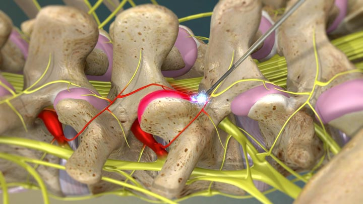 Radiofrequency Ablation | Integrated Pain Consultants Scottsdale and Phoenix Arizona