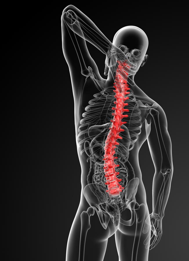 Spinal Injections Help Provide Relief From Pain | Integrated Pain Consultants