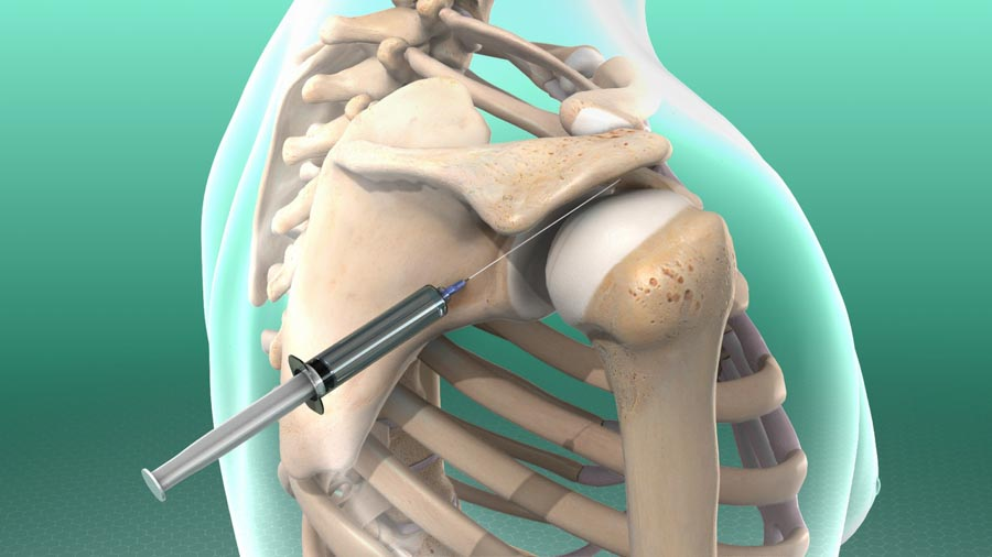 Using Injections to Treat Pain | Integrated Pain Consultants, Scottsdale
