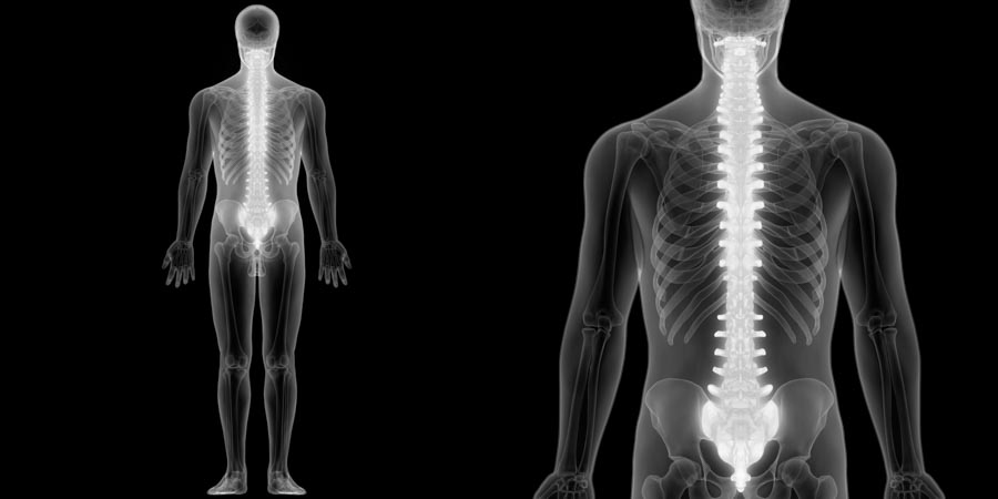 Injections for Relieving Back Pain | Integrated Pain Consultants, Scottsdale
