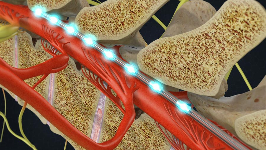Ideal Candidate for Spinal Cord Stimulation | Dr. Nikesh Seth, Scottsdale