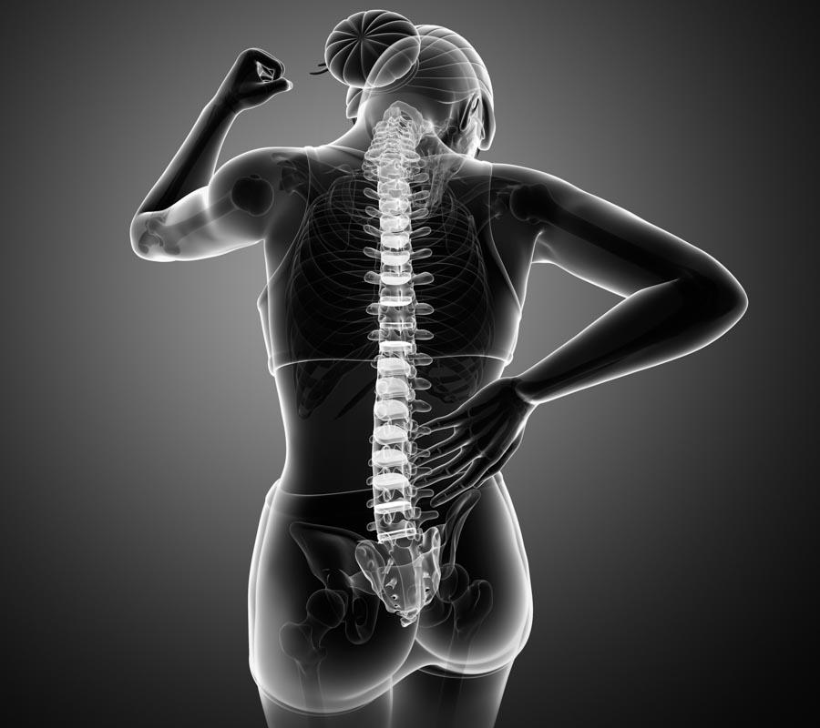 Bulging And A Herniated Disc Differences | Integrated Pain Consultants