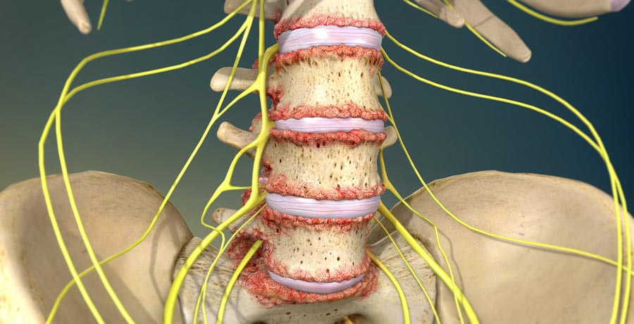 Spinal Cord Stimulation: Effective Treatment For Chronic Back Pain