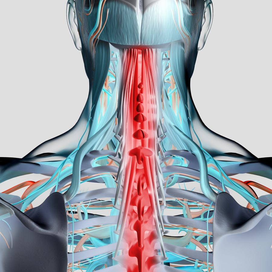 An Overview of Spinal Cord Stimulation | Integrated Pain Consultants
