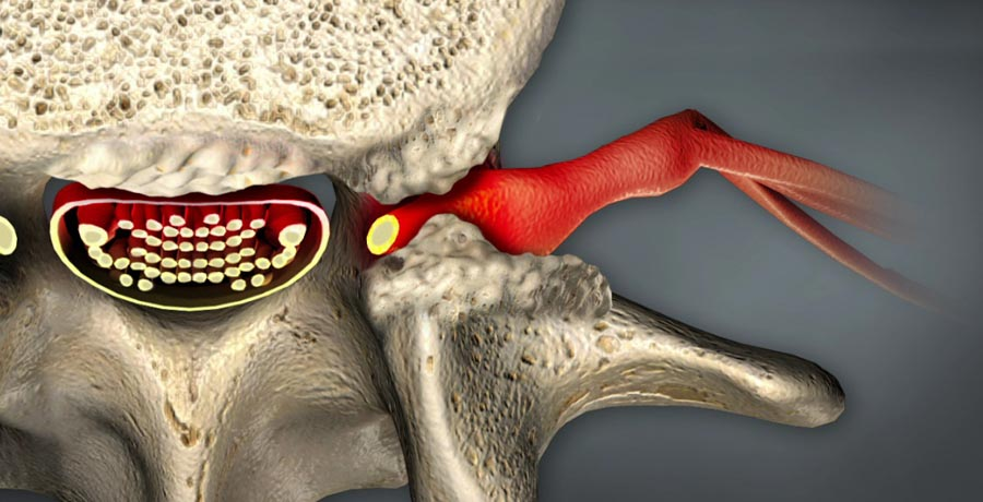 Using Spinal Cord Stimulation for Pain Relief | Integrated Pain Consultants