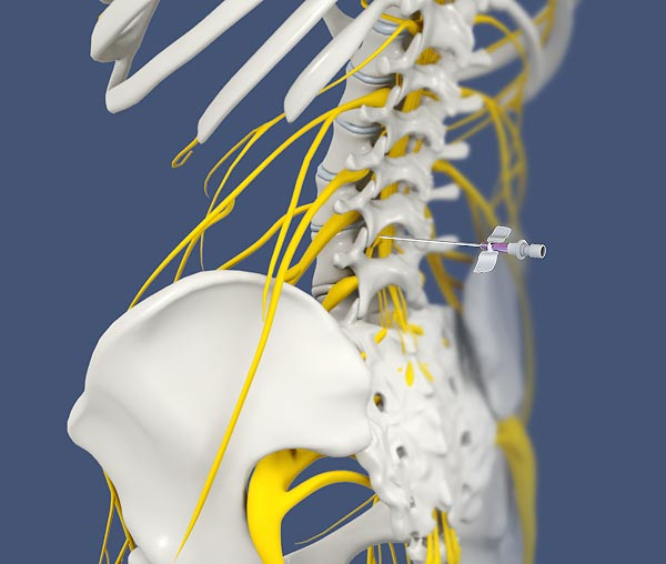 Sympathetic Blocks: Stop Pain at the Source | Integrated Pain Consultants