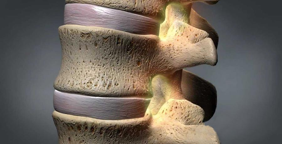 Common Conditions Can Cause Neuropathy | Integrated Pain Consultants