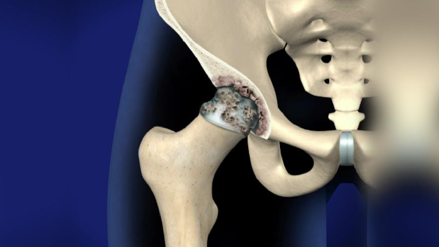 Joint Pain: Focus on Hips | Integrated Pain Consultants, Scottsdale