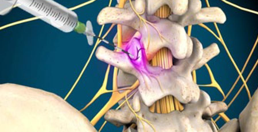 Is a Medial Branch Block for Me? Integrated Pain Consultants, Scottsdale