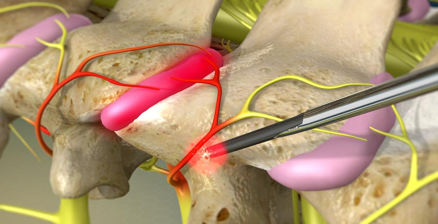 Cutting-Edge Radiofrequency Ablation In Pain Clinics | Dr. Nikesh Seth