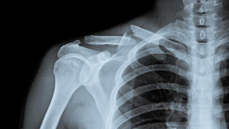 Work-Related Injuries | Integrated Pain Consultants, Scottsdale