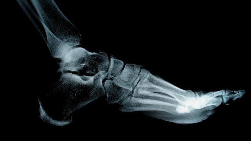 Sports Pain Conditions | Integrated Pain Consultants Scottsdale