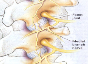 Facet Joint and Medial Branch Nerve