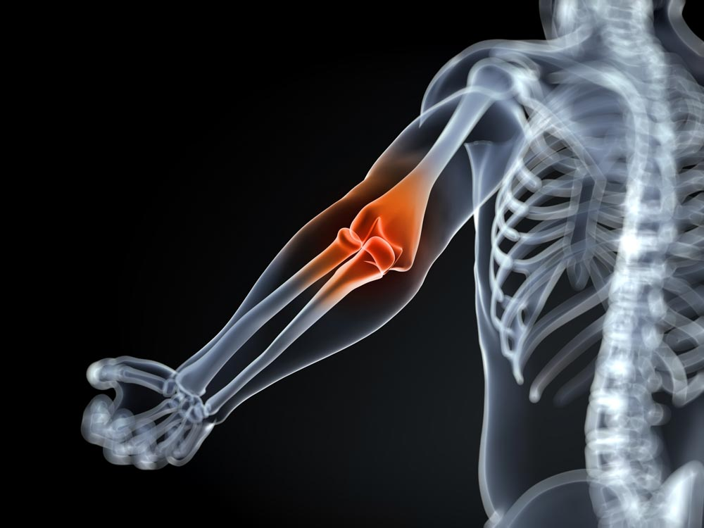 Can You Get Joint Injections in Any Joint? | Integrated Pain Consultants